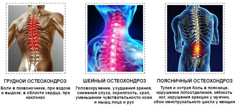 kondroprotektív gyógyszerek nyaki osteochondrozishoz)