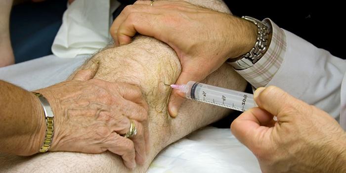ízületi kondroprotektív kezelés)