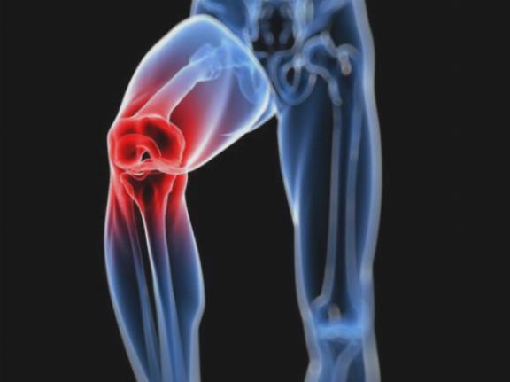 chondroprotectors gyógyszerek artrózis kezelésére
